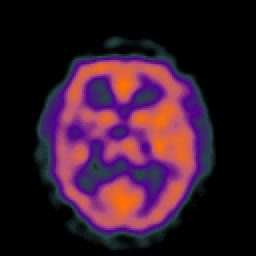 SPECT/PET image of the brain